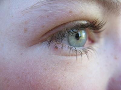 Kramper i øjet