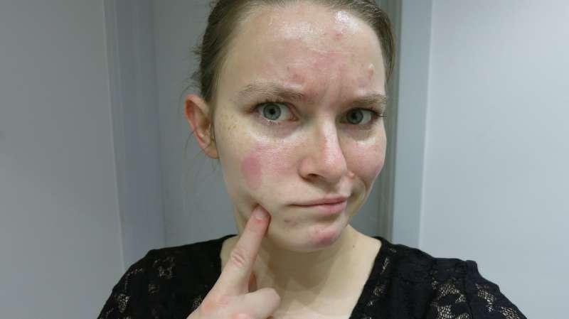 Huden bliver rød efter et par minutters kontakt med en større koncentration af cremen...