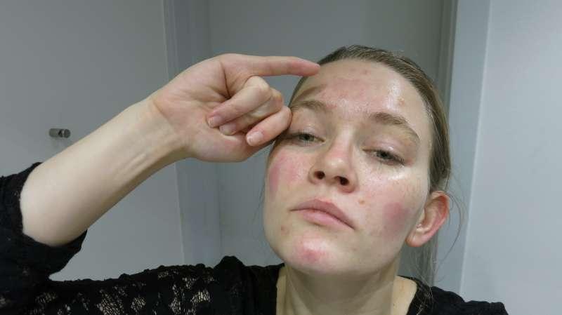 allergisk reaktion i ansigtet