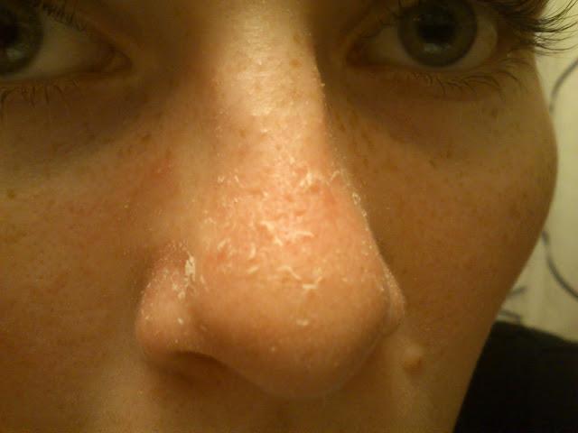 Irriterende med tør hud på næsen